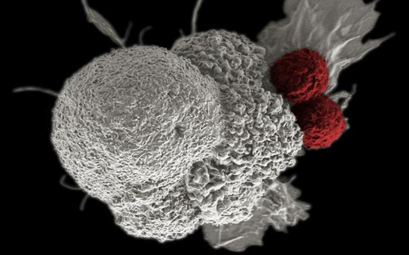 Ξεκινά η μεγαλύτερη δοκιμή εξέτασης αίματος που ανιχνεύει 50 είδη καρκίνων